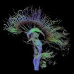 640px-DTI-sagittal-fibers