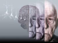 Una luce nuova sulla malattia di Alzheimer