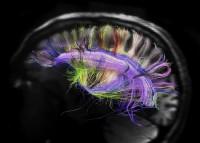 Verso la costruzione di un cervello artificiale