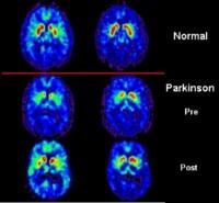 Nuove speranze per la cura del Parkinson
